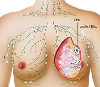 Cara Cepat Mengobati Kanker Payudara